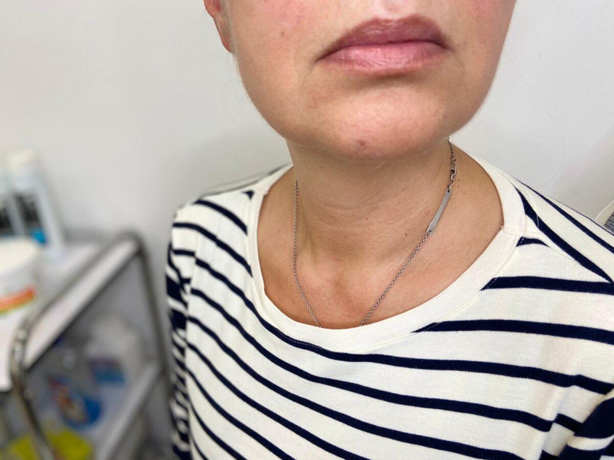 Eliminare barbie dubla- HIFU- Bonton Beauty
