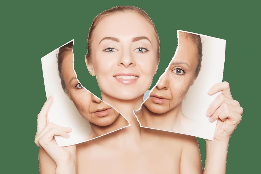 Tratament antirid si de lifting – HIFU- Bonton Beauty