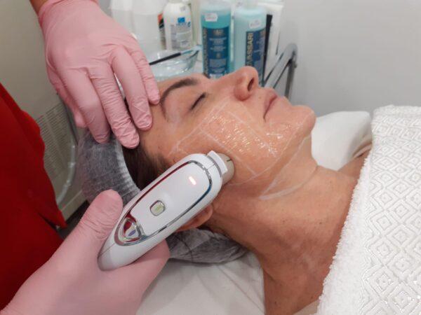HIFU- Lifting Facial fara chirurgie